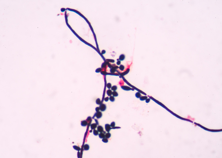 infective: budding yeast cells with pseudohyphae in urine gram stain  fine with microscope. Stock Photo