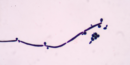 microscopical: budding yeast cells with pseudohyphae in urine gram stain  fine with microscope. Stock Photo
