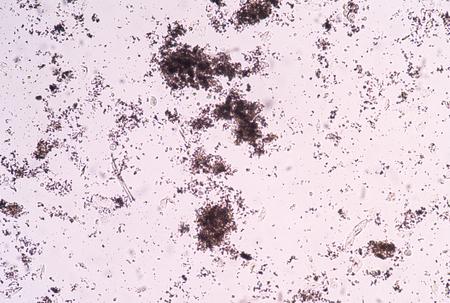 amorphous: Amorphous in urine sample fine with microscope.