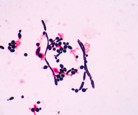 unicellular: Branching budding yeast cells with pseudohyphae in urine gram stain fine with microscope.