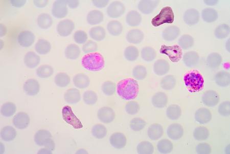 malaria: malaria blood smear pictures