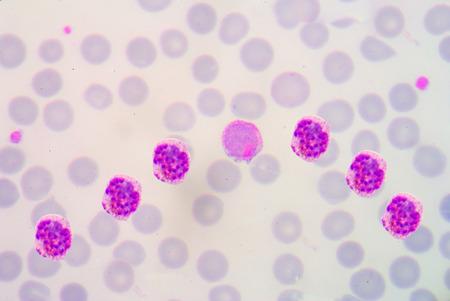 malaria: малярии мазок крови фотографии