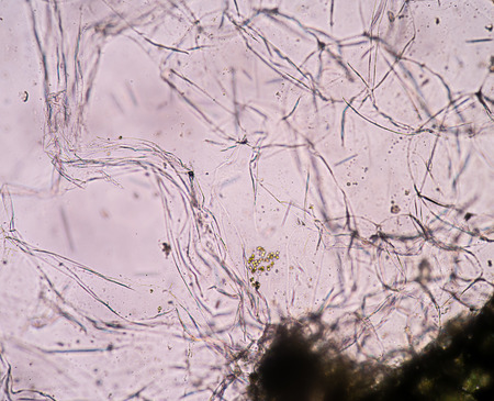 Real photo of plant cells Stock Photo