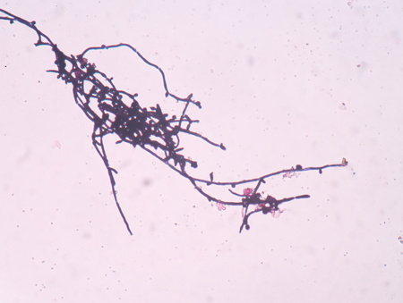roundish: Branching budding yeast cells with pseudohyphae in urine gram stain fine with microscope.