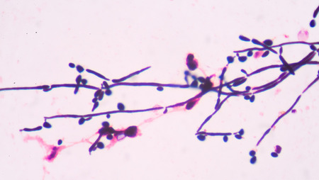 eukaryotic: Branching budding yeast cells with pseudohyphae in urine gram stain fine with microscope.