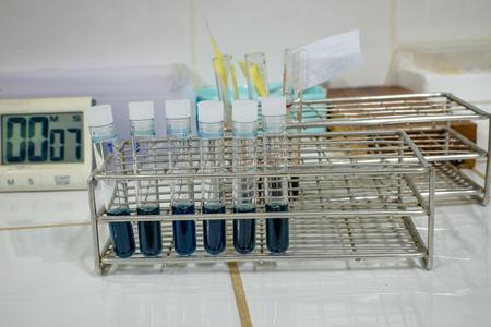 precipitacion: Prueba diclorofenol indofenol precipitaci�n en laboratorio. Foto de archivo