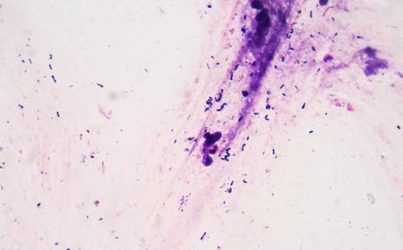 gram: Bacteria gram staining Stock Photo