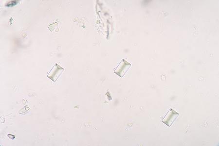 tripple: Tripple phosphete cystal in urine.real specimen.