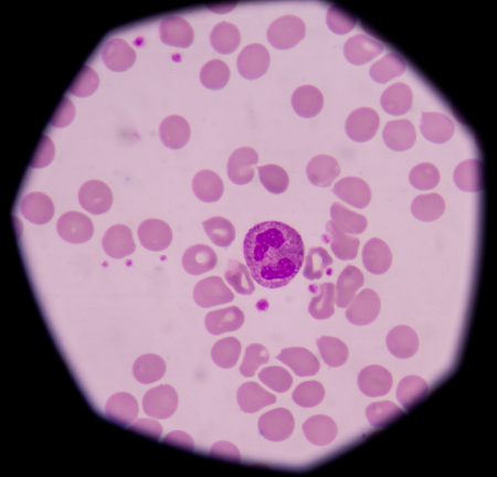 neutrophil: Neutrophils are recruited to the site of injury within minutes following trauma, and are the hallmark of acute inflammation Stock Photo