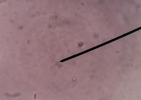 epithelial: Renal tubular epithelial cells, usually larger than granulocytes