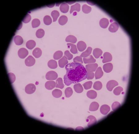 white blood cells: Los monocitos son un tipo de gl�bulos blancos (leucocitos). Ellos son los m�s grandes de todos los leucocitos.