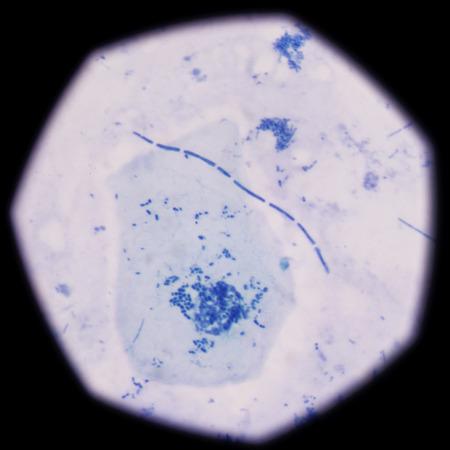 bacterias: bacterias en forma de bastón; modelo de bacterias; bacterias azules