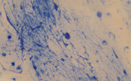 bacillus: Acid-fast organisms are easy to characterize using standard microbiological techniques  Gram stain - if an acid-fast bacillus (AFB)