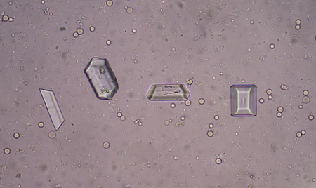 triple phosphate crystal in urine sediment Stok Fotoğraf