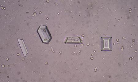 phosphate: triple phosphate crystal in urine sediment Stock Photo