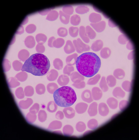 Atypical, or reactive, lymphocytes are lymphocytes that, as a result of antigen stimulation, have become quite large, sometimes more than 30 µm in diameter. The cells vary greatly in size and shape. The nucleus is less clumped than that of the normal lym