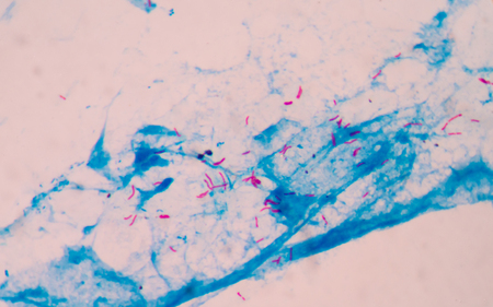 bacterial infection: Bacterial infection tuberculosis.red cells in blue background.AFB 3+ fine with microscope.
