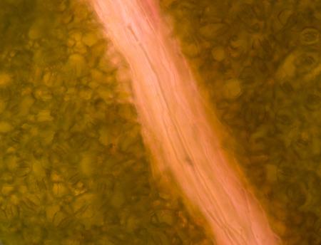 vacuole: Green plant cells under microscope