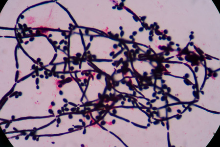 unicellular: yeast cell Stock Photo