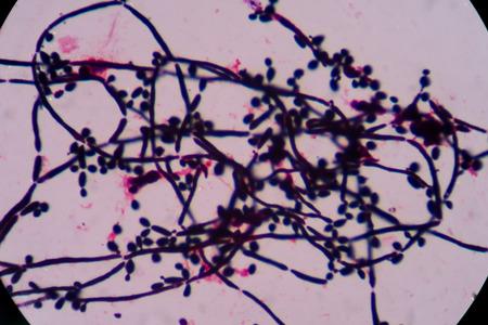 eukaryotic: yeast cell Stock Photo