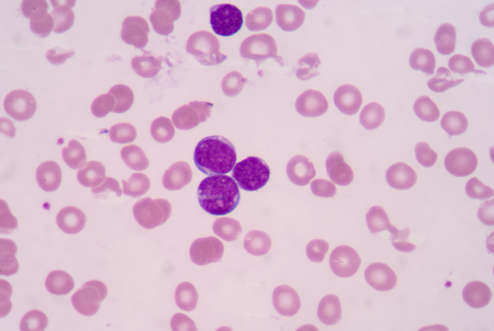 thalassemia: Precursor cell on blood smear. Stock Photo