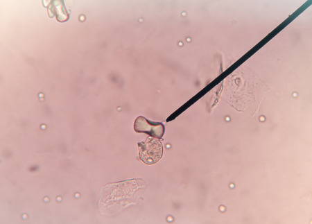 urea: Dumbbell and octadehdral crystals of calcium oxalate,in urine.