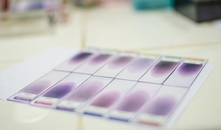 methanol: blood smear test or blood film