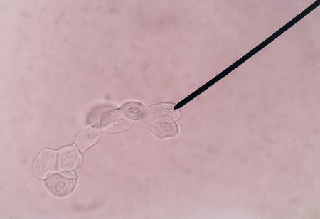 renal: renal epithelial cells Stock Photo