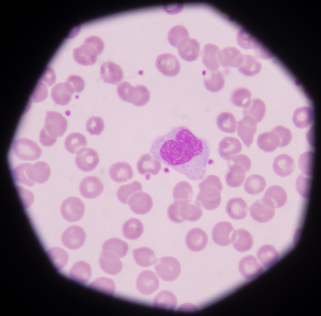antigen response: Monocyte Stock Photo
