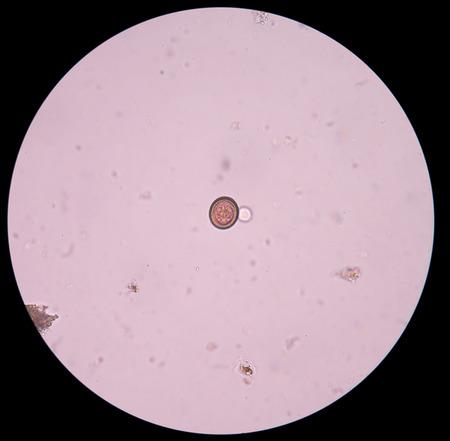 ascaris: taenia solium