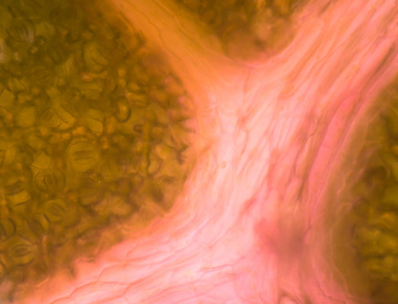 vacuole: Blurred plant cells under microscope.