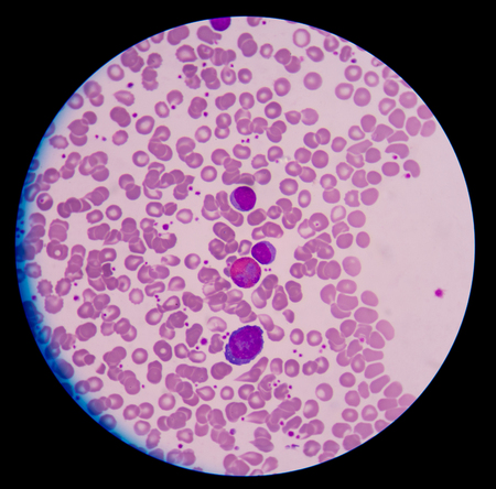 basophil: Medical blood cells.