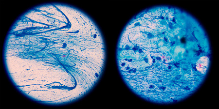 pathogenic: Mycobacterium tuberculosis is a pathogenic bacterial species in the family Mycobacteriaceae and the causative agent of most cases of tuberculosis,in left AFB 1+,in right AFB 2+