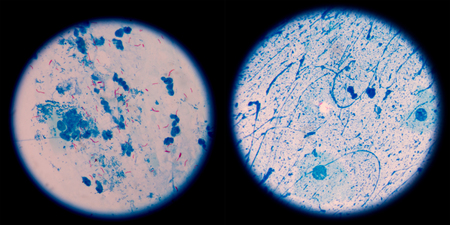 Mycobacterium tuberculosis is a pathogenic bacterial species in the family Mycobacteriaceae and the causative agent of most cases of tuberculosis.in left AFB 3+ ,in right scanty  2 cells per 100 oil field.