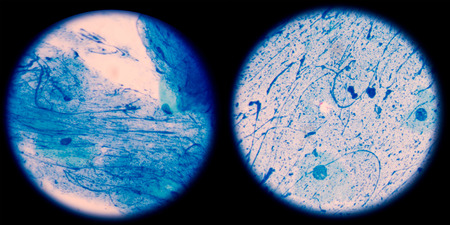 enteric: Mycobacterium tuberculosis is a pathogenic bacterial species in the family Mycobacteriaceae and the causative agent of most cases of tuberculosis.in left Negative ,in right scanty 2 cells per 100 oil field.