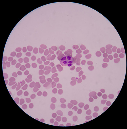 abnormal: Abnormal neutrophil.