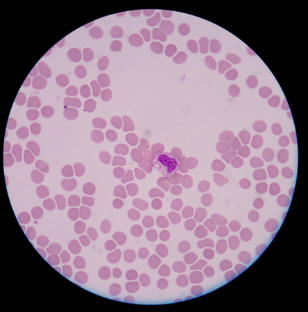 antigen response: Abnormal neutrophil.