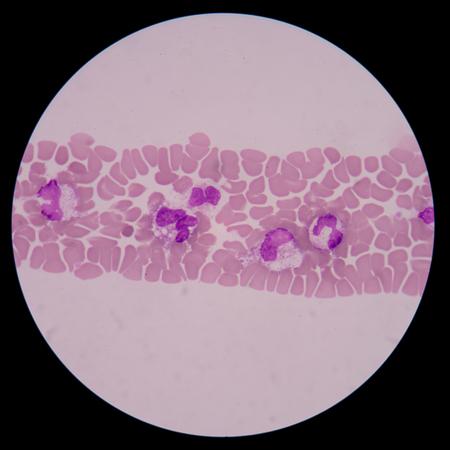 thalassemia: Abnormal neutrophil.