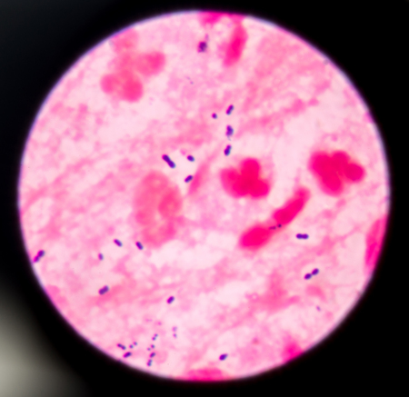 pili: bacteria on red background.
