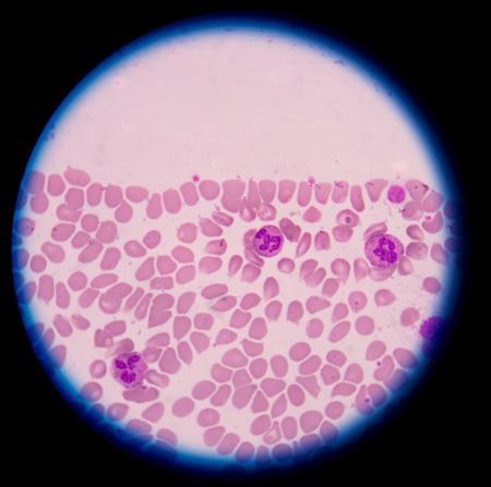 neutrophil Stock Photo