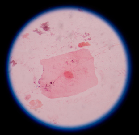 epithelial cells: red epithelial cells