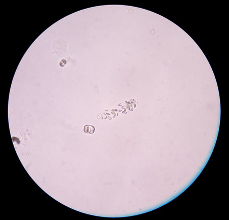 urine analysis: calcium oxalate crystal in urine analysis.