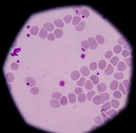 platelet: Blood cells medical background.Giant platelet