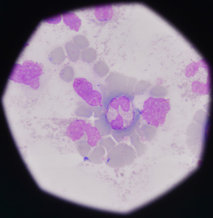 erythrocytes: blood smear medical background.Bacteria infection showing pmn with toxicgranule