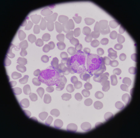 neutrophil: blood smear medical background.Bacteria infection showing pmn with toxicgranule