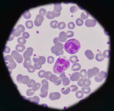 celulas humanas: frotis de sangre infección médica background.Bacteria mostrando PMN con toxicgranule
