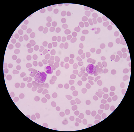 sepsis: Blood smear form sepsis.septicemia can progress to sepsis.