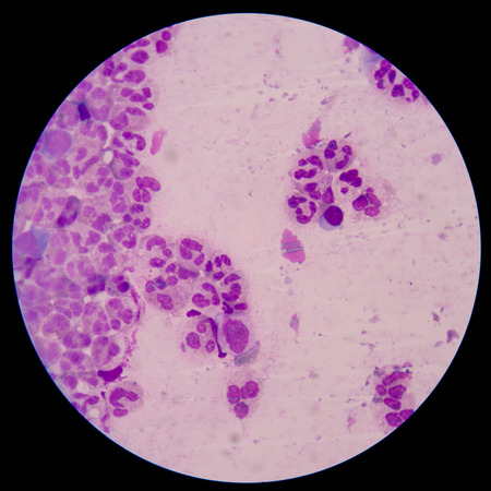 macrophage: Chemical and cellular factors involved in the inflammatory response to tissue damage and repair.white blood cells clumping.