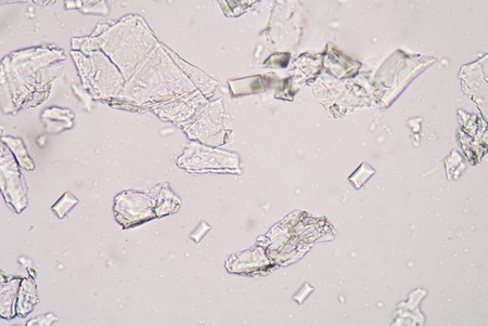 tripple: Tripple phosphet crystal in urine analysis. Stock Photo