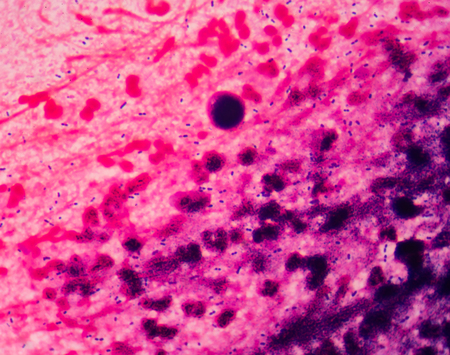 bacterias: bacteria fondo de la ciencia médica.